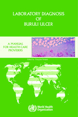 Laboratory diagnosis of buruli ulcer