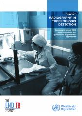 Chest radiography in tuberculosis detection